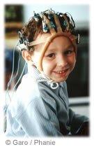 épilepsie opération chirurgie