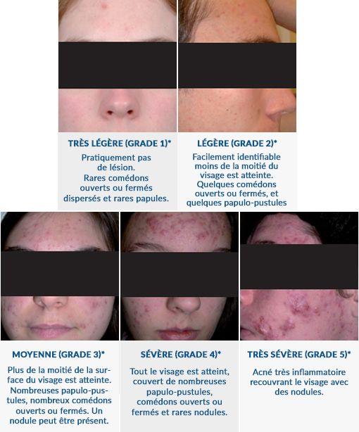 stades de gravite de l acne
