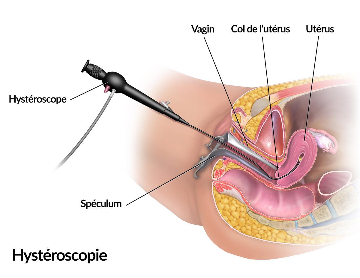 Shema de l hysteroscopie